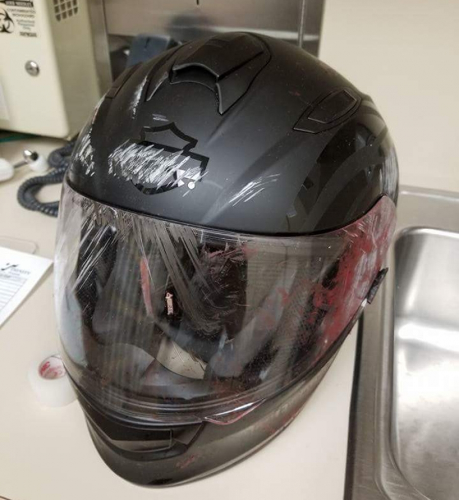 This helmet saved a boy's life last month